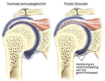 Frozen Shoulder - Informatie - Wouda Orthopedie