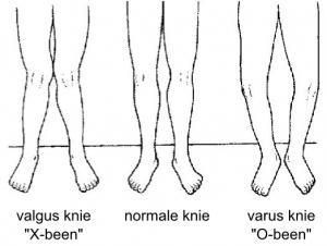 x-benen o-benen standsafwijking
